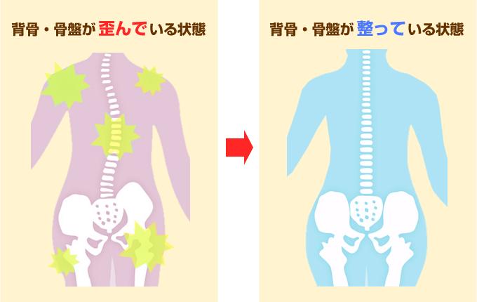 歪んだ骨格のイラスト